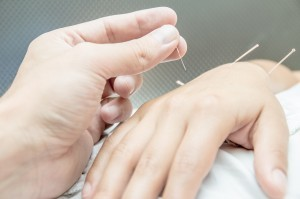 Community Supported Acupuncture